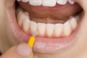 Der HNO-Arzt empfiehlt auf die richtige Zahnhygiene zu achten