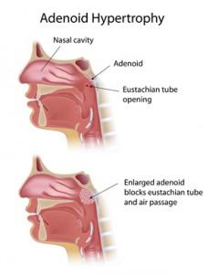 Unter Polypen versteht der Facharzt HNO überwiegend tropfenartig wachsende gutartige Veränderungen der Nasenschleimhaut