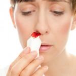 Die meisten Blutungen treten im vorderen Teil der Nase auf